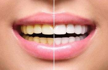 Woman Smiling Before and After Teeth Whitening Lawrenceville GA, Indian Land, SC