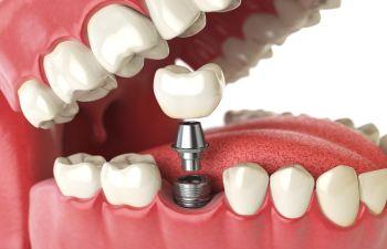 Dental Implant Indian Land, SC