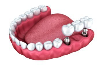 Tooth Replacement Indian Land SC